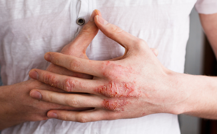 How to Manage Hand Eczema