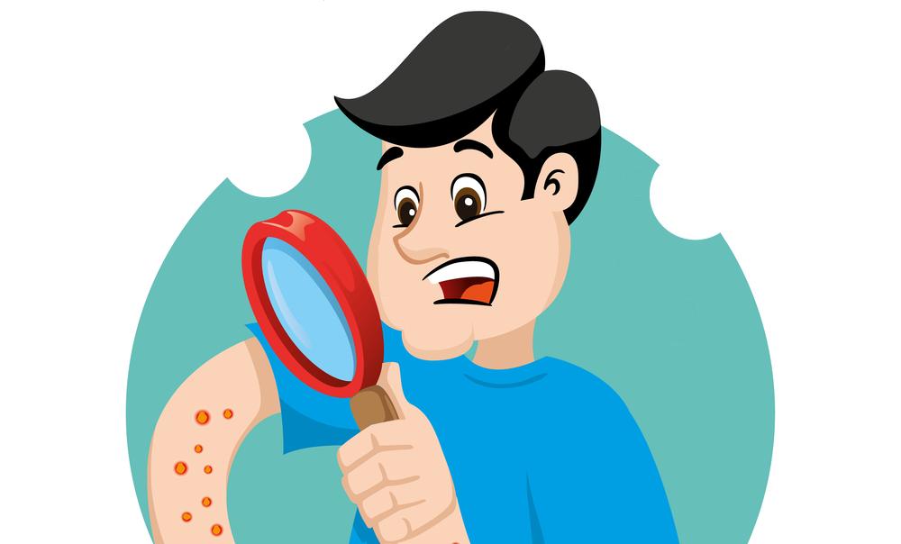 Eczema Infection Symptoms