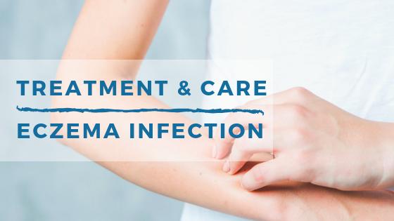 Le traitement et les soins pour les infections Eczéma