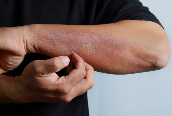 Things you should know to detect Eczema Infection