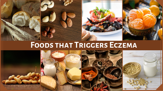 10 Foods that may Worsen your Eczema