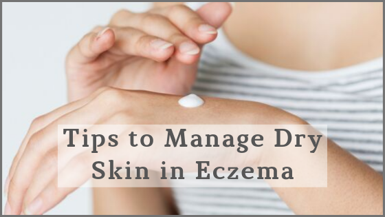 Managing Skin Dryness in Eczema