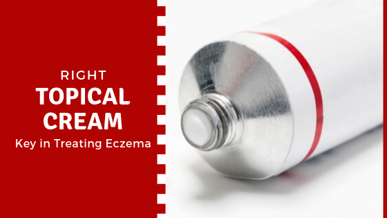 Topical Creams to treat Eczema
