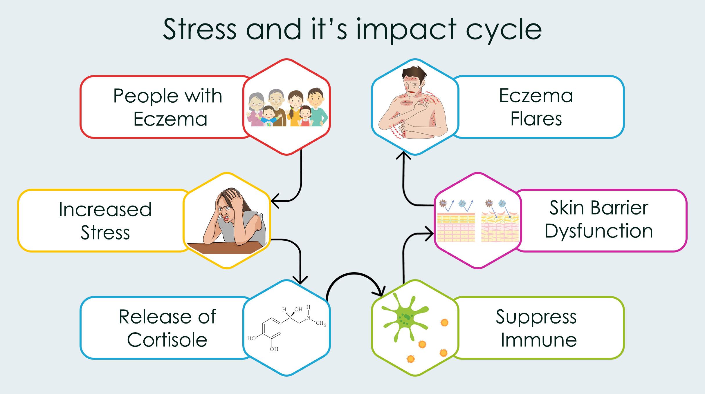 Eczema due to Stress