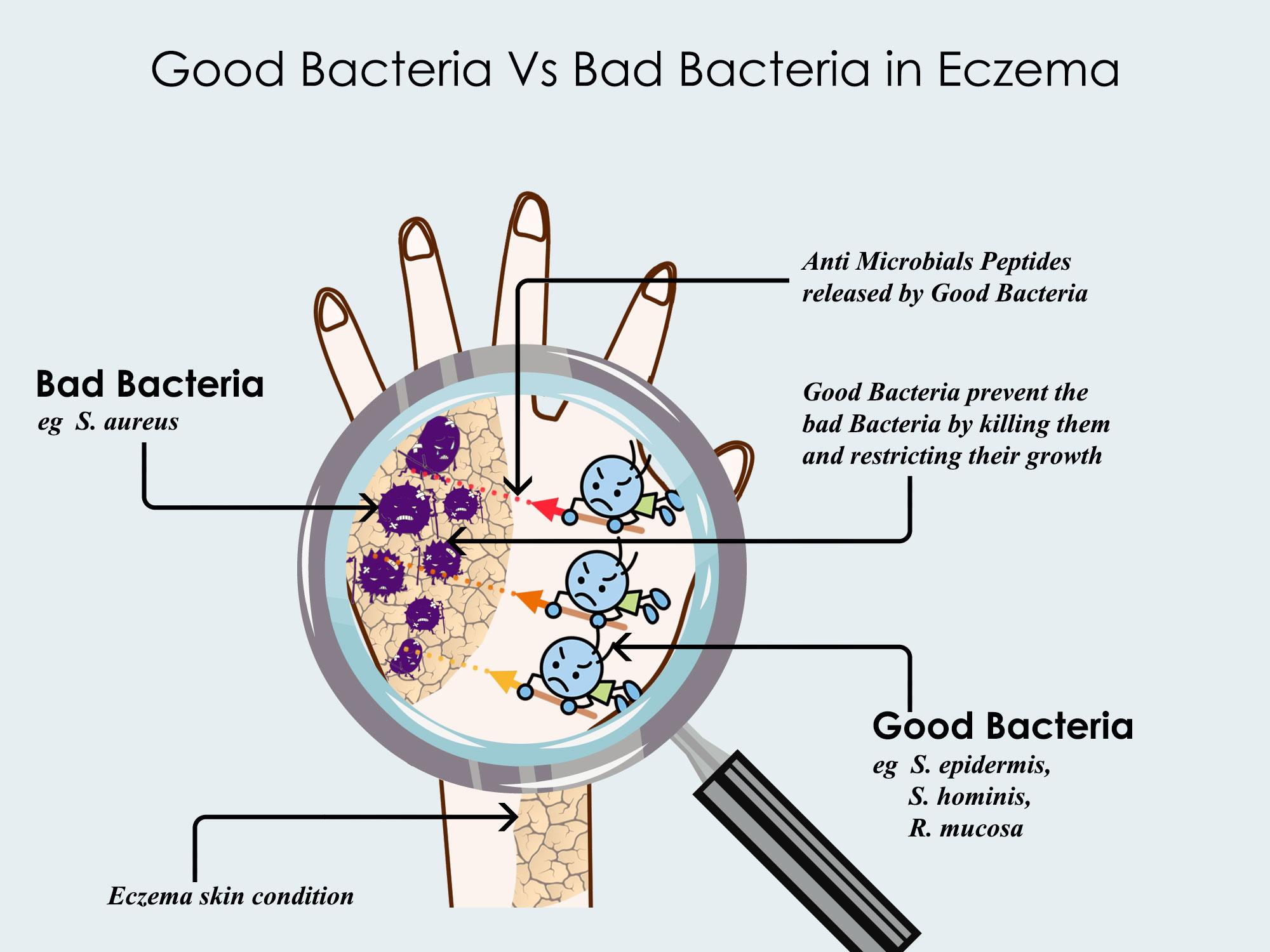Good bacteria vs Bad Bacteria