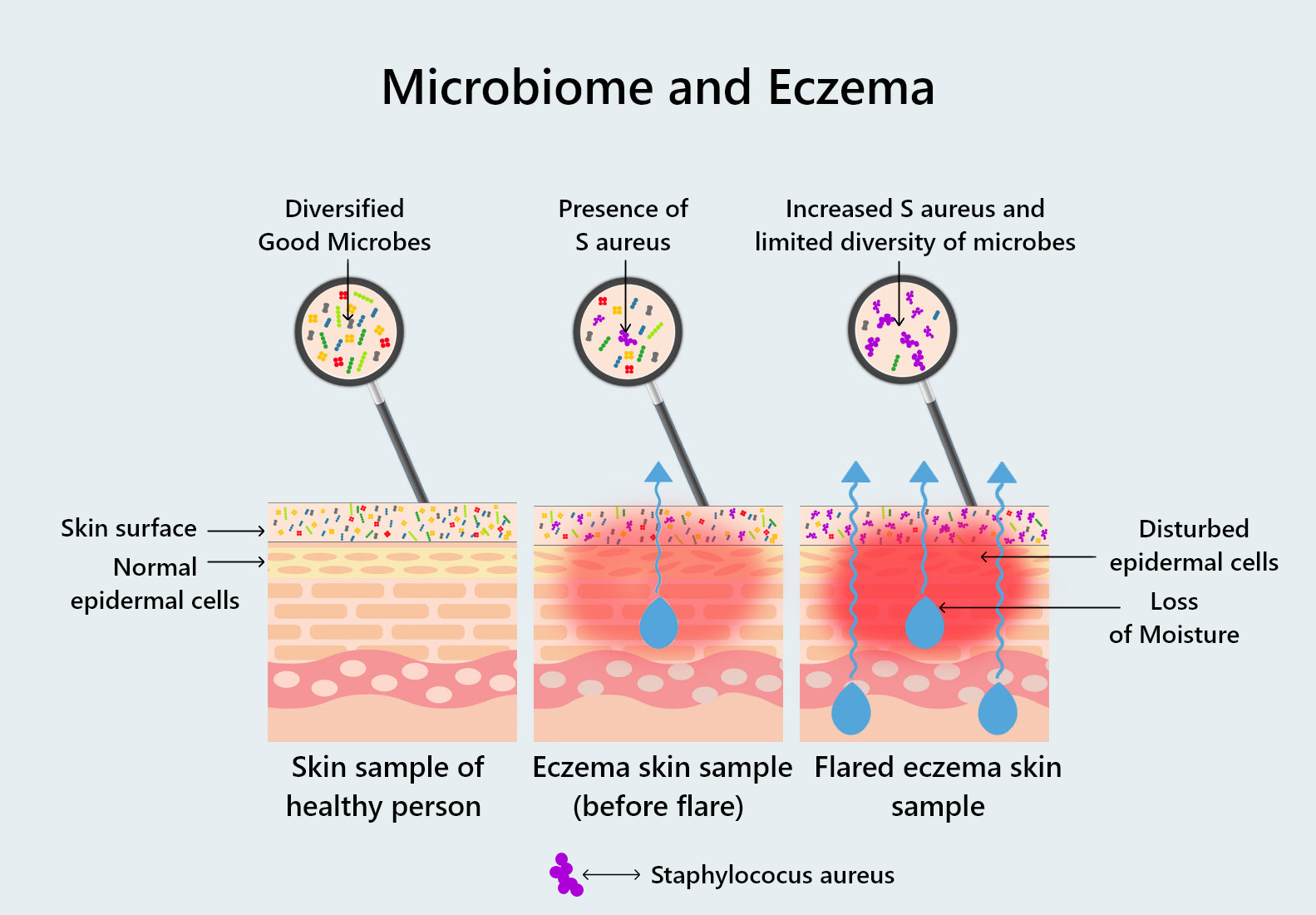 Microbiome and Eczema