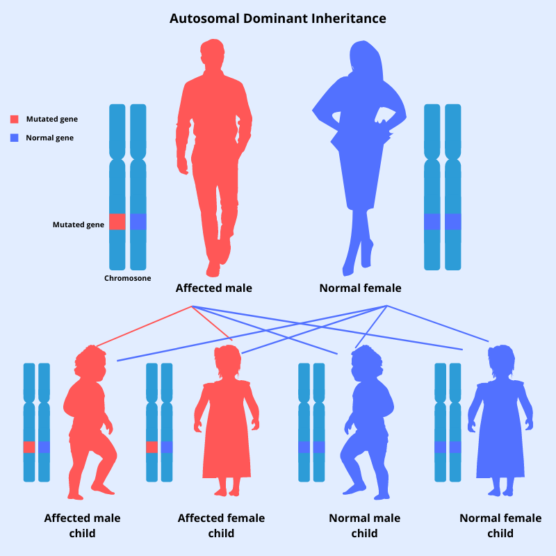 Autosomal dominant inheritance pattern