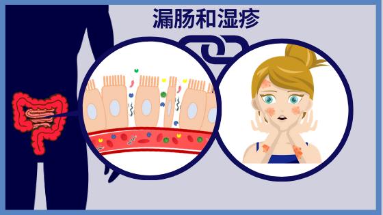 肠漏综合征可能是湿疹的根源吗?