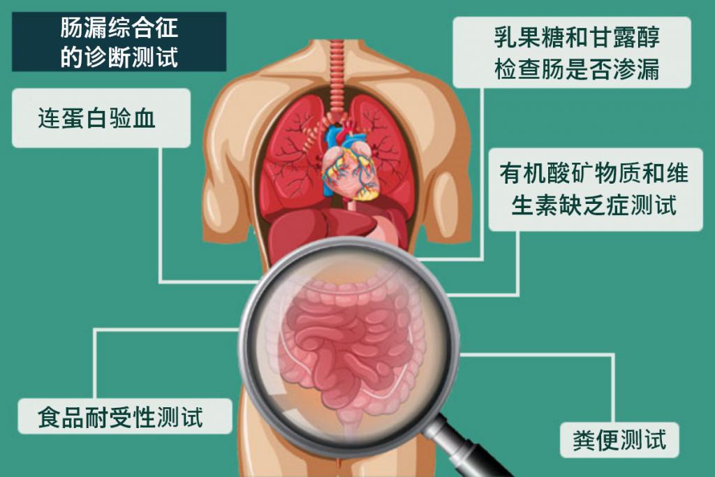 诊断肠漏综合征