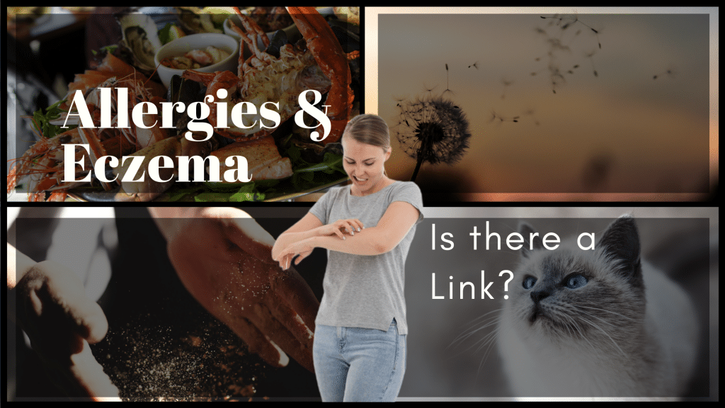 Allergies and Eczema – Is there a link?