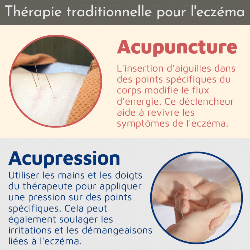 Traditional therapy for eczema